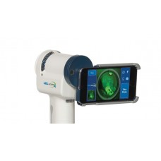 VELscope Vx Screening Kit w/ Imaging Adapter & iPod Touch 6